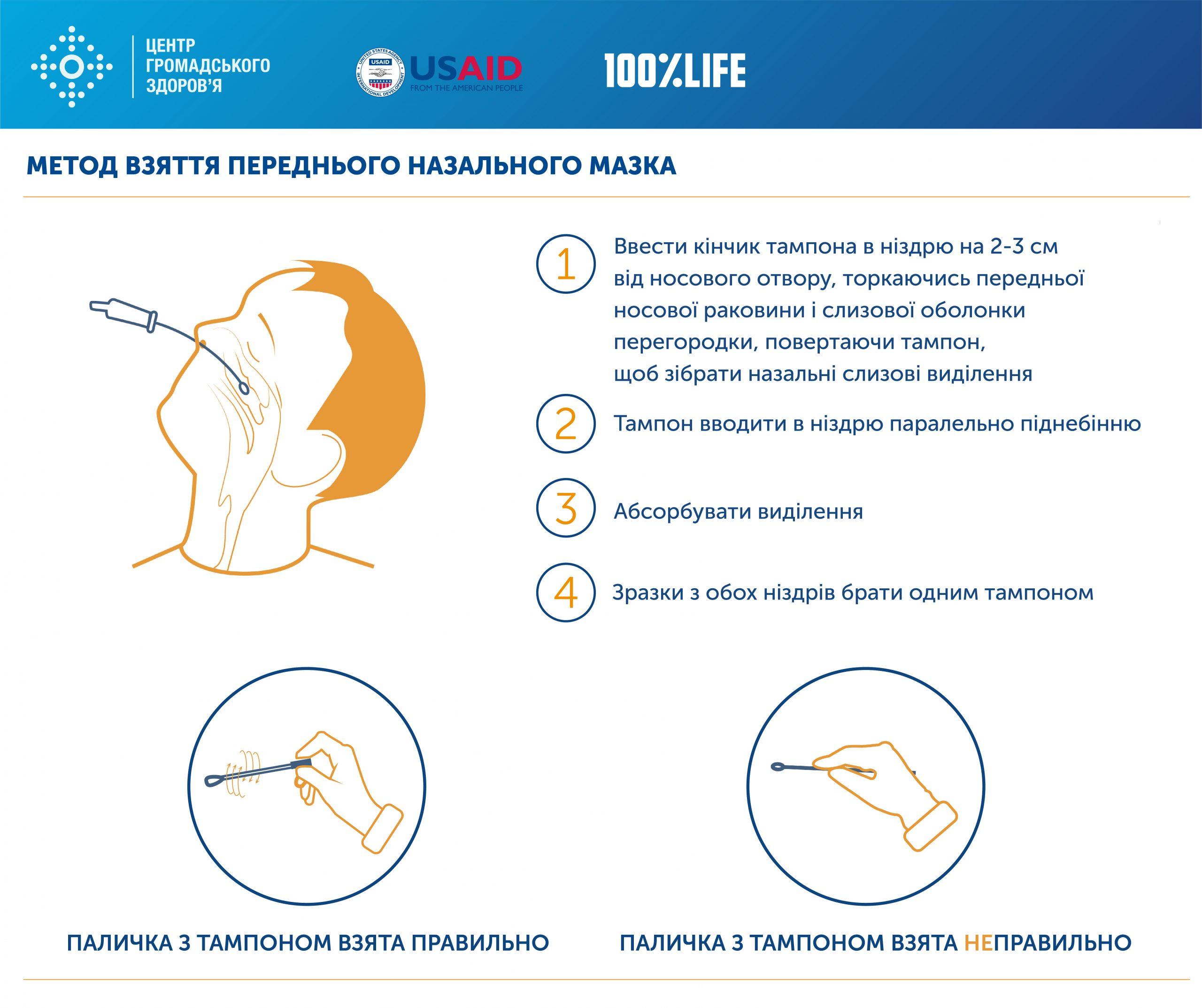 Метод взяття переднього нозального мазка
